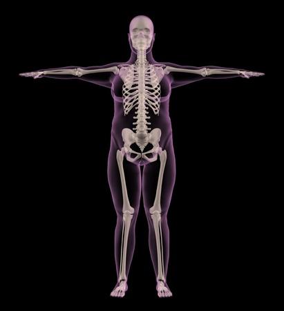 mujeres gordas: Render 3D de un m�dico esqueleto de una mujer con sobrepeso