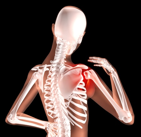 spinal: 3D render of a female medical skeleton with shoulder pain highlighted
