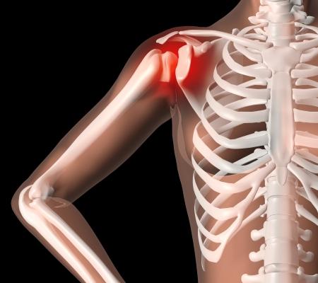 douleur epaule: 3D render d'un squelette de femme m�decin avec douleur � l'�paule Banque d'images