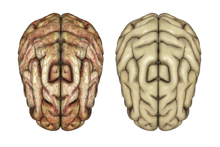 cerebra: 3D render of two brains, one healthy and one diseased