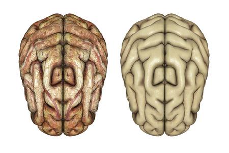 diseased: 3D render of two brains, one healthy and one diseased
