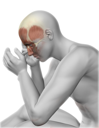 cerebra: 3D render of a male figure with head pain Stock Photo