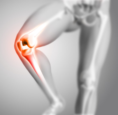 anatomically: 3D render of a medical figure with close up of knee and glowing bones