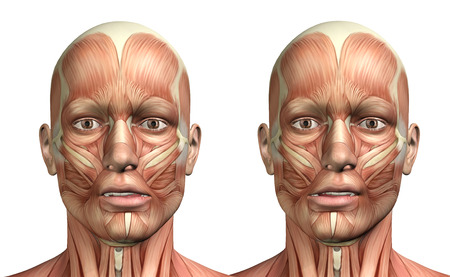 3D render of a medical figure showing mandible lateral deviation left and right
