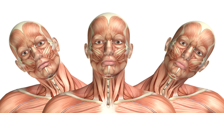 lateral: 3D render of a medical figure showing cervical lateral bending