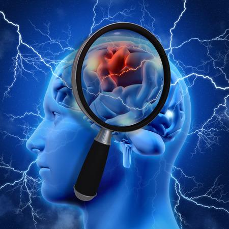 뇌 묘사 알츠하이머 연구를 검사 돋보기와 3D 의료 배경