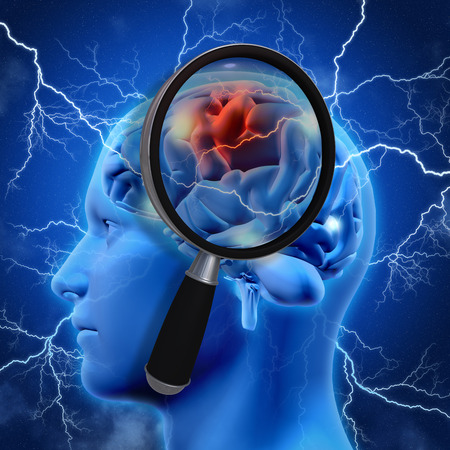 alzheimers: 3D medical background with magnifying glass examining brain depicting alzheimers research Stock Photo