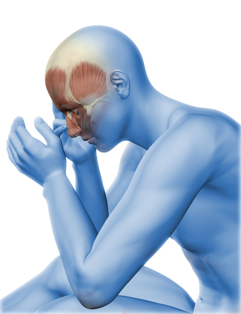 headache: 3D render of a male figure with head pain Stock Photo