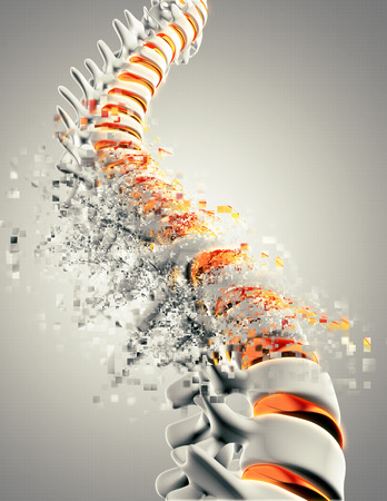 pixelated: 3D render of a close up of a spine with a pixelated effect Stock Photo