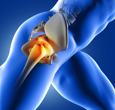 3D render of a blue medical image of close up of hip joint