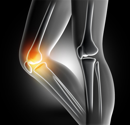 3D render of a female medical legs with bones in knee highlighted Stock Photo