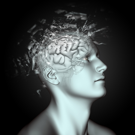 3D render of a male figure with shatter effect on head and brain depicting mental health issues