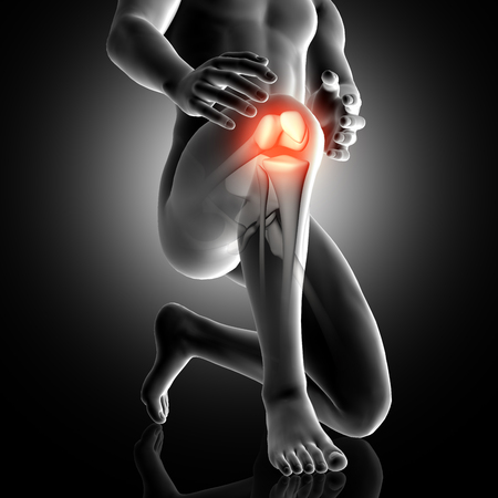 3D render of a male figure with knee highlighted in pain