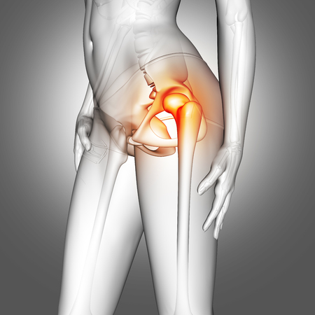 3D render of a female medical figure with hip bone highlighted