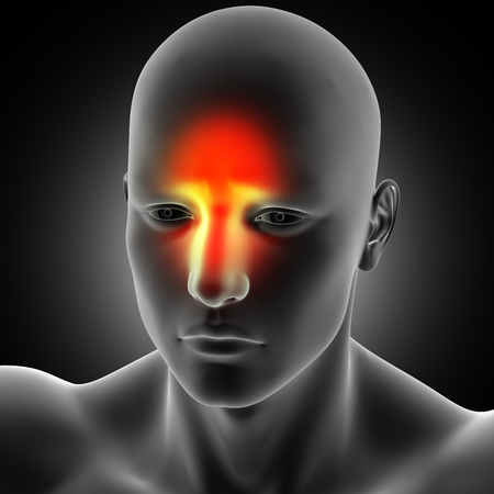 3D render of a male medical figure showing headache and sinus pain