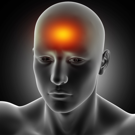 3D render of a male medical figure with headache