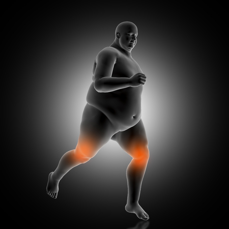 3D render of a medical background showing overweight male jogging Stock fotó