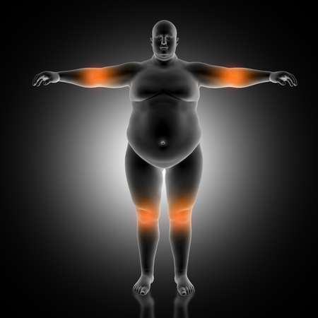 3D render of a medical background of overweight male with elbow and knees highlighted