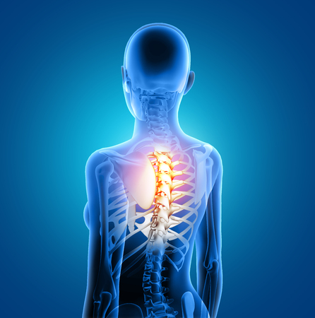 3D render of a female medical figure with spine highlighted Stock Photo