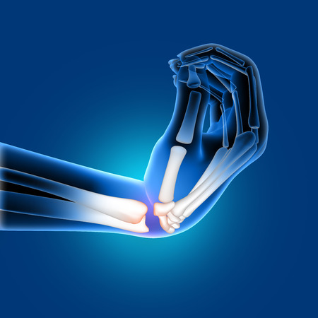 3D render of a medical image of a painful bent wrist