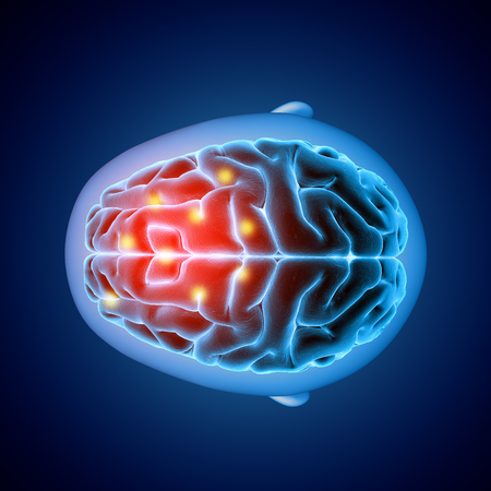 3D render of a medical image showing top view of a brain with parts highlighted