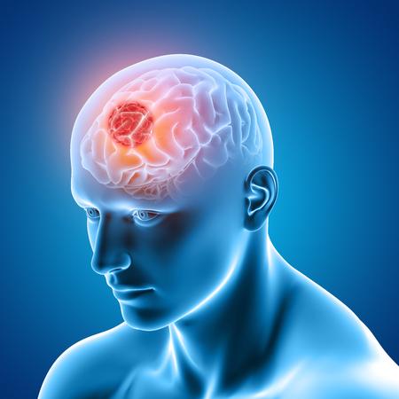Rendu 3D d'une image médicale montrant une figure masculine avec une tumeur au cerveau