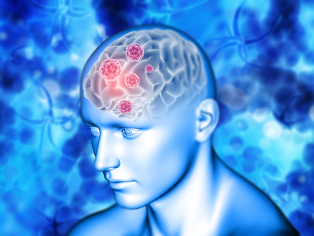 3D render of a medical background with virus cells on brain highlighted 写真素材
