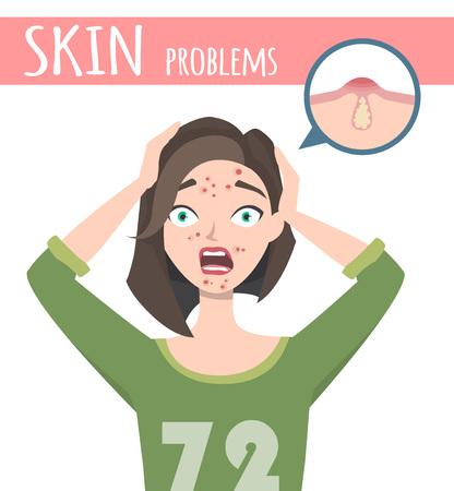 Traitement de l'acné avant, mousse nettoyante pour le visage, illustration de dessin animé Banque d'images - 87379114