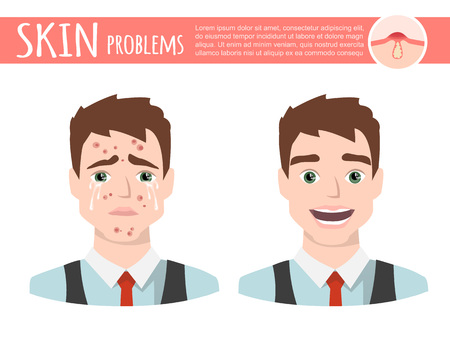An acne treatment before after, facial cleansing foam, cartoon illustration on a plain background. 向量圖像