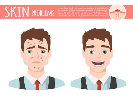 Un traitement d'acné avant après, mousse nettoyante pour le visage, illustration de dessin animé sur un fond Uni. Banque d'images - 87379115