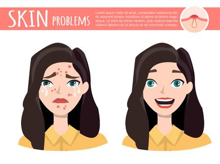 Acne treatment illustration. Illustration