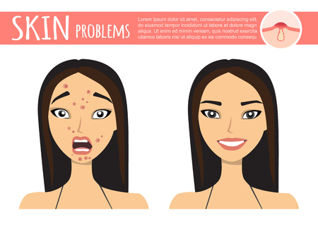 acne treatment before after, facial cleansing foam, cartoon illustration Vettoriali