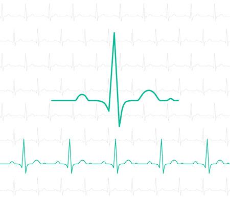 EKG-symbool op wit - vector medische achtergrond