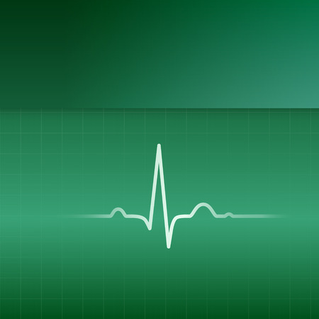 systole: White EKG line and green background. Vector illustration.
