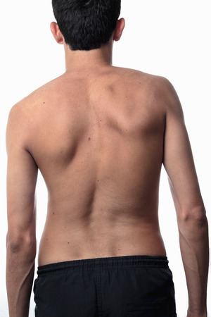 nude back: scoliosis, thin man on his back, no shirt. curvature of the spine visible