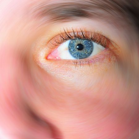 bloodshot: Eye in focus, rest blures in circle Stock Photo