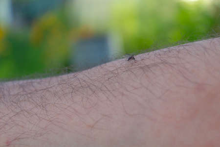 The photo shows an insect. It's a mosquito. He sits on a man's hairy arm and bites her. 免版税图像