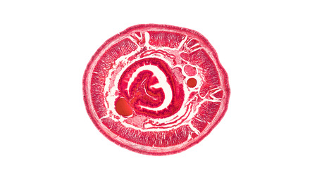 cross section cut of an earthworm under the microscope