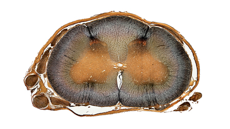 microscopic cross section of spinal cord