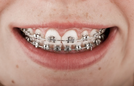 Close-up of a happy teenage girl smiling with braces photo