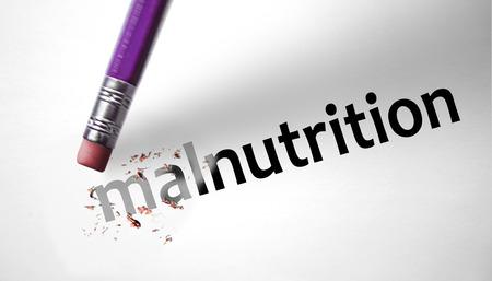 malnutrition: Eraser deleting the word Malnutrition