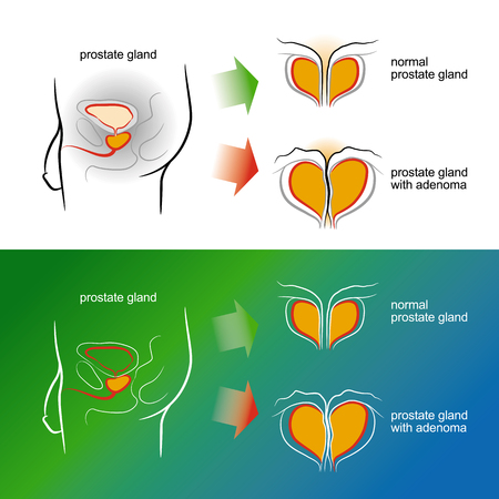 hormonal: Sketch of a male prostate gland with adenoma. Color vector illustration. Isolated on a white background Illustration