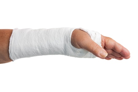 Broken arm with a plaster cast isolated on white photo