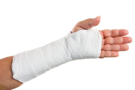broken wrist: Brazo quebrado con un molde de yeso aislado en blanco