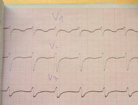 verify: verificare il mio ECG  Archivio Fotografico