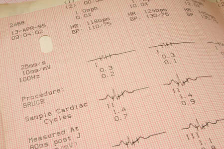 plotting: cardiological test results #1