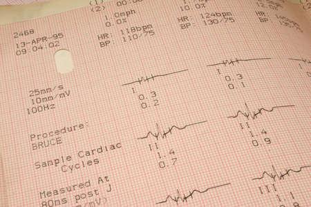 cardioid: Los resultados de las pruebas cardiol�gicas # 1