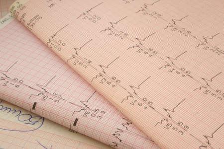 cardioid: resultados de las pruebas cardol�gicas # 2 Foto de archivo