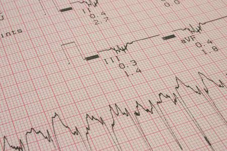cardioid: los resultados de las pruebas cardiol�gicas # 3