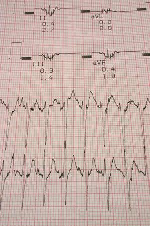cardioid: los resultados de las pruebas cardiol�gicas # 4
